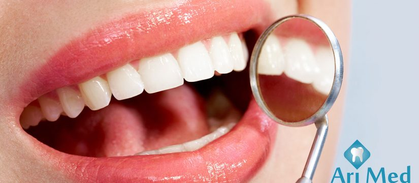 beneficiile detartrajului stomatolog baia mare